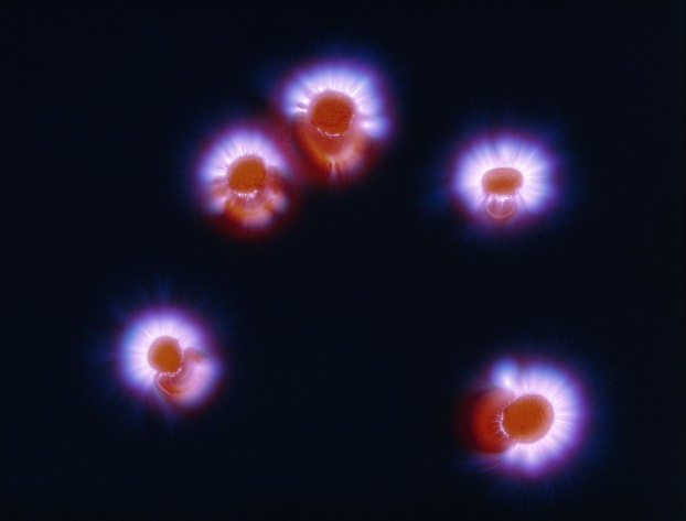 Kirlian photograph